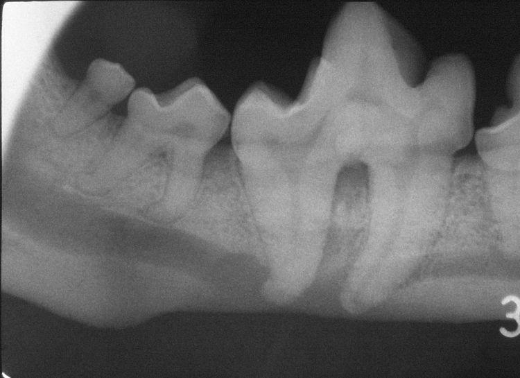 変形歯の症例