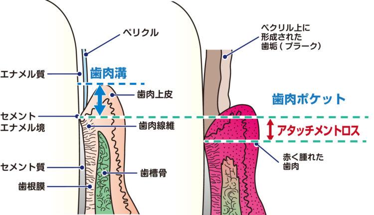 歯周病を評価 アタッチメントロス