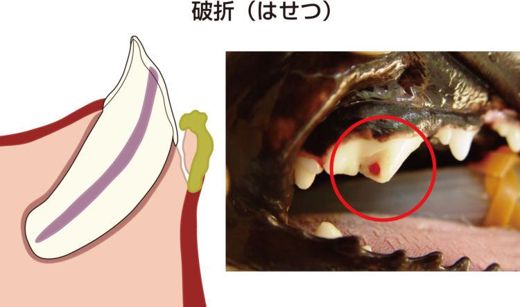 歯髄炎(しずいえん) 破折