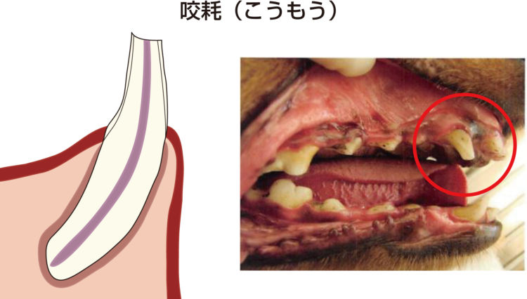 歯髄炎(しずいえん) 咬耗