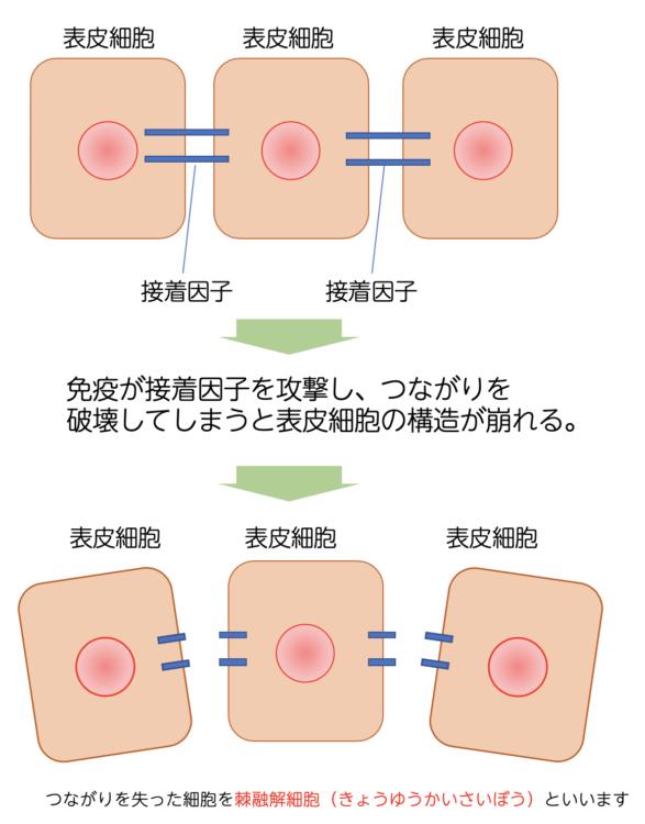 【棘融解細胞 犬の棘融解細胞のメカニズム】
